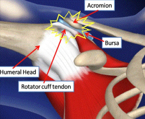 Picture: Shoulder impingement