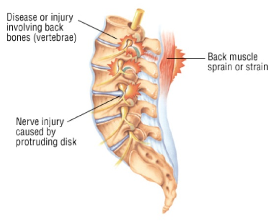 Damian Warner SUP injuries